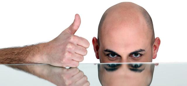 alopecia-grande